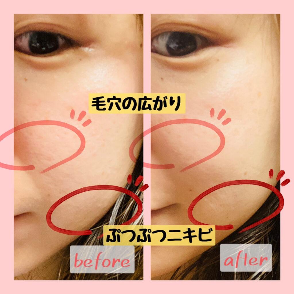 フェイシャル Before→After